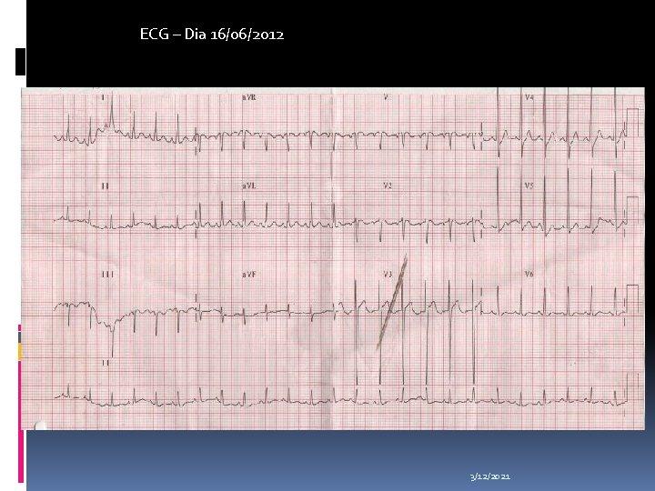 ECG – Dia 16/06/2012 3/12/2021