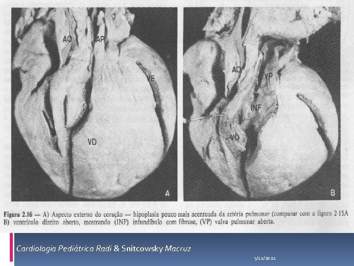 Cardiologia Pediátrica Radi & Snitcowsky Macruz 3/12/2021