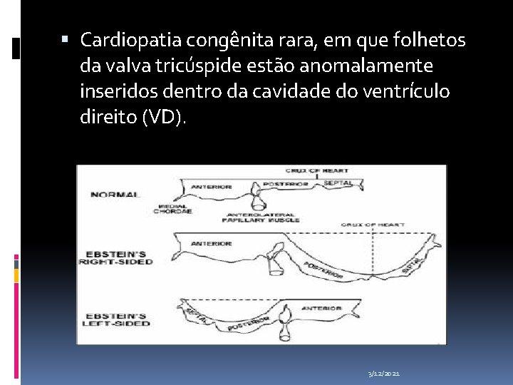Cardiopatia congênita rara, em que folhetos da valva tricúspide estão anomalamente inseridos dentro