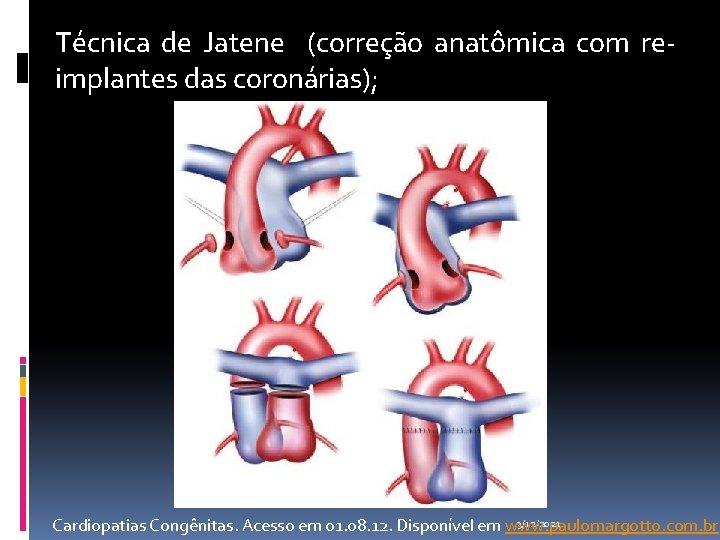 Técnica de Jatene (correção anatômica com reimplantes das coronárias); 3/12/2021 Cardiopatias Congênitas. Acesso em
