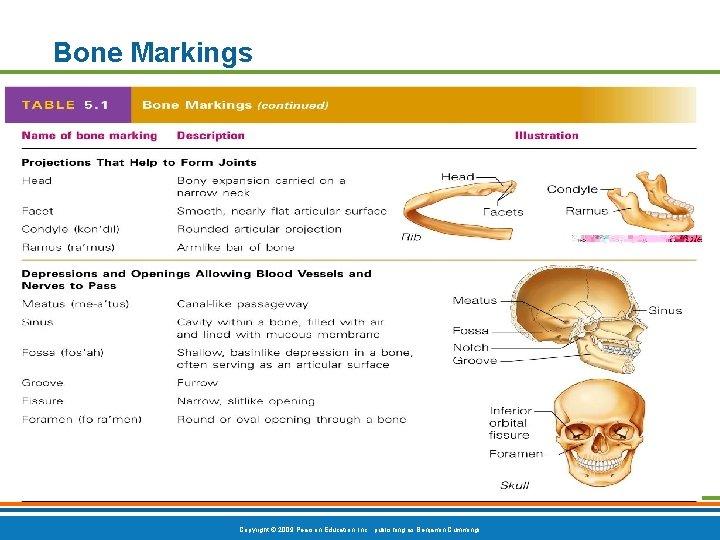 Bone Markings Table 5. 1 (2 of 2) Copyright © 2009 Pearson Education, Inc.