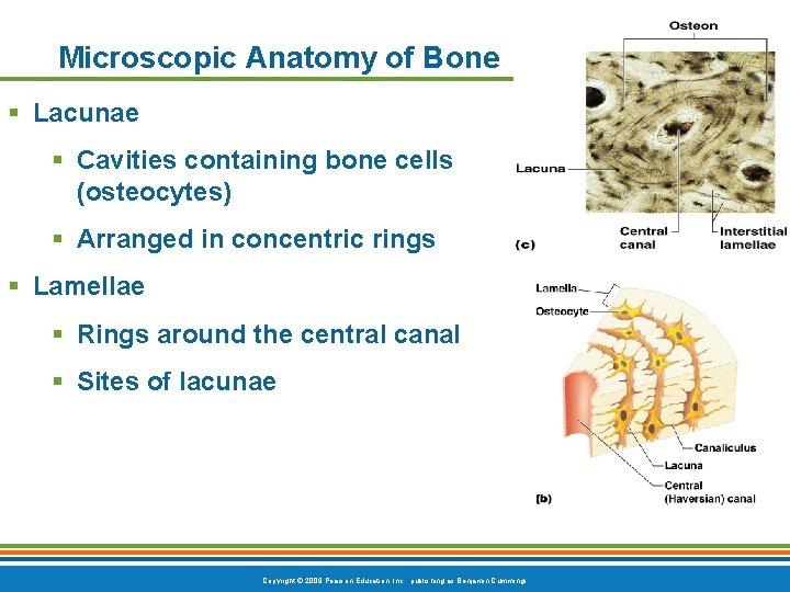 Microscopic Anatomy of Bone § Lacunae § Cavities containing bone cells (osteocytes) § Arranged
