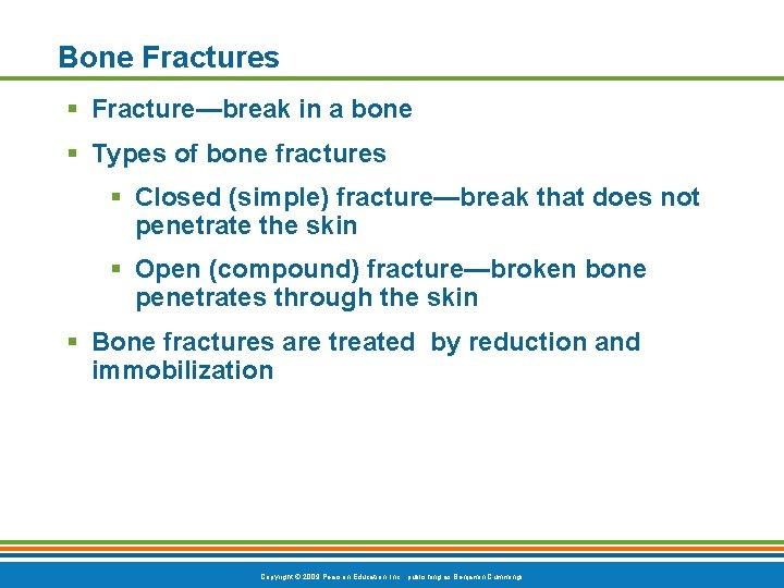 Bone Fractures § Fracture—break in a bone § Types of bone fractures § Closed