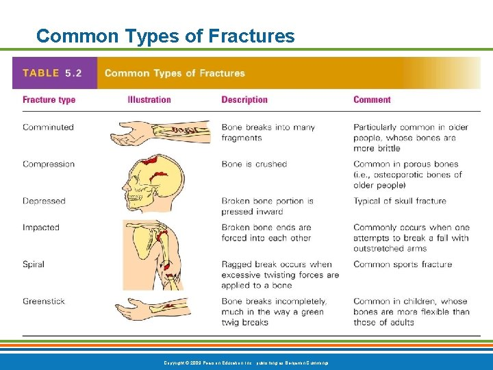 Common Types of Fractures Table 5. 2 Copyright © 2009 Pearson Education, Inc. ,