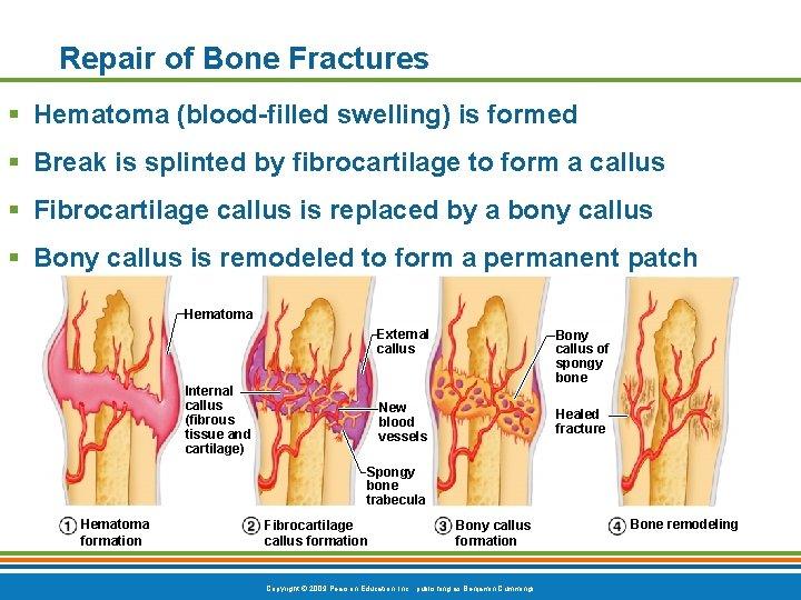 Repair of Bone Fractures § Hematoma (blood-filled swelling) is formed § Break is splinted
