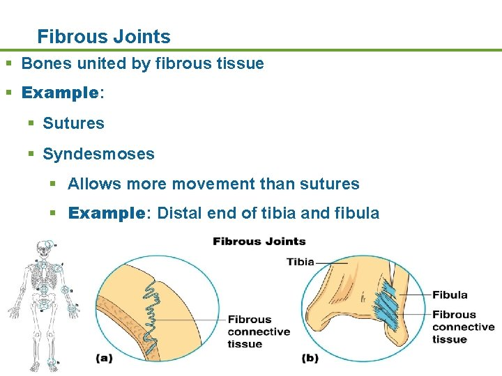 Fibrous Joints § Bones united by fibrous tissue § Example: § Sutures § Syndesmoses