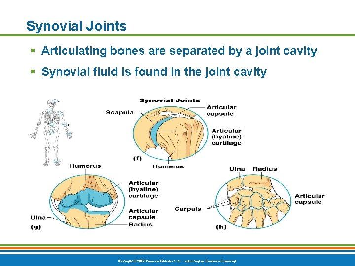 Synovial Joints § Articulating bones are separated by a joint cavity § Synovial fluid