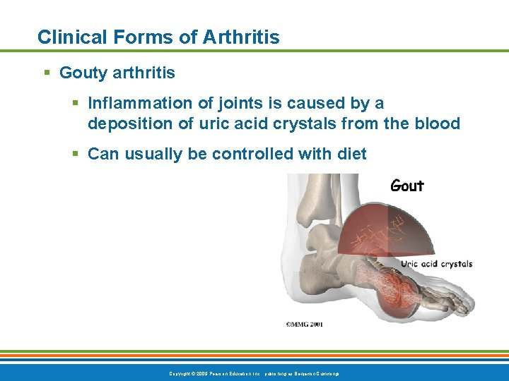 Clinical Forms of Arthritis § Gouty arthritis § Inflammation of joints is caused by