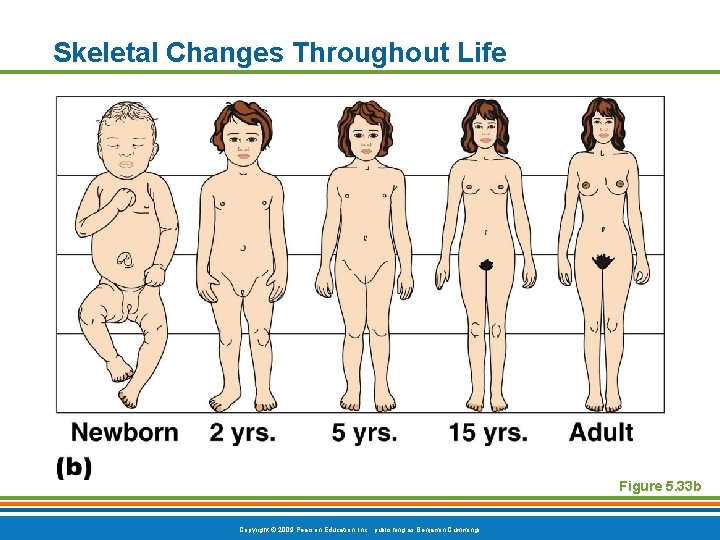 Skeletal Changes Throughout Life Figure 5. 33 b Copyright © 2009 Pearson Education, Inc.