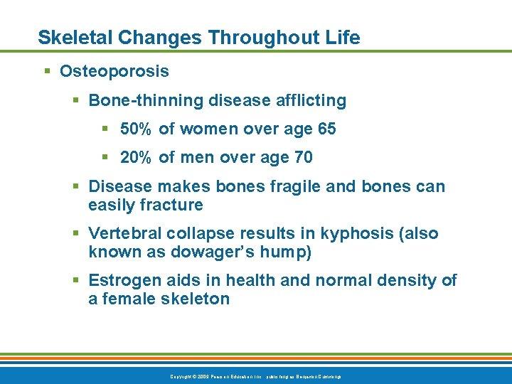Skeletal Changes Throughout Life § Osteoporosis § Bone-thinning disease afflicting § 50% of women
