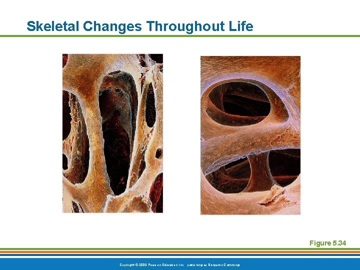 Skeletal Changes Throughout Life Figure 5. 34 Copyright © 2009 Pearson Education, Inc. ,