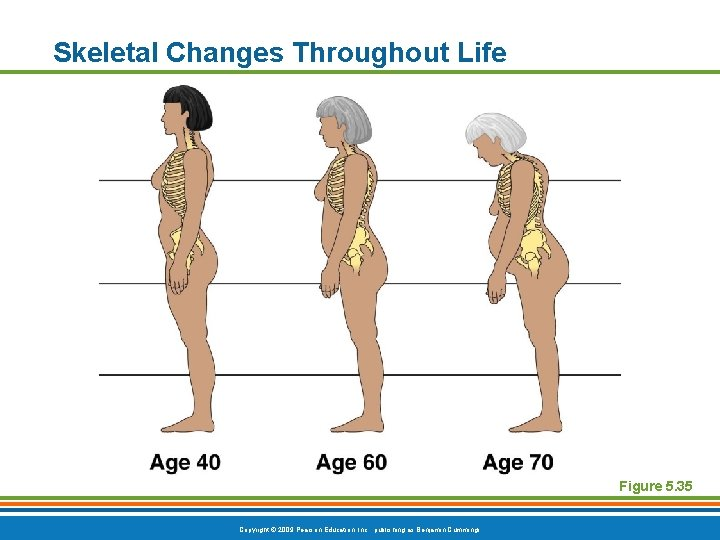Skeletal Changes Throughout Life Figure 5. 35 Copyright © 2009 Pearson Education, Inc. ,