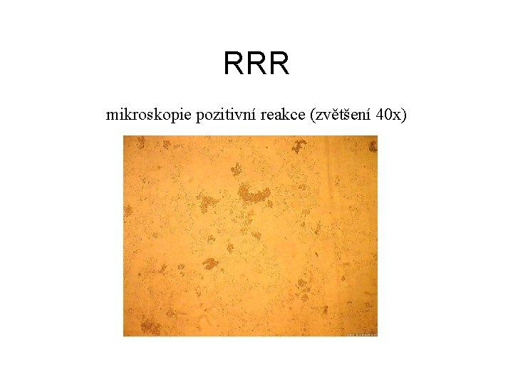 RRR mikroskopie pozitivní reakce (zvětšení 40 x)