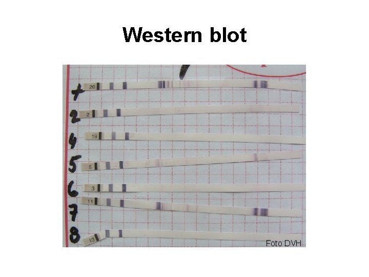Western blot Foto DVH
