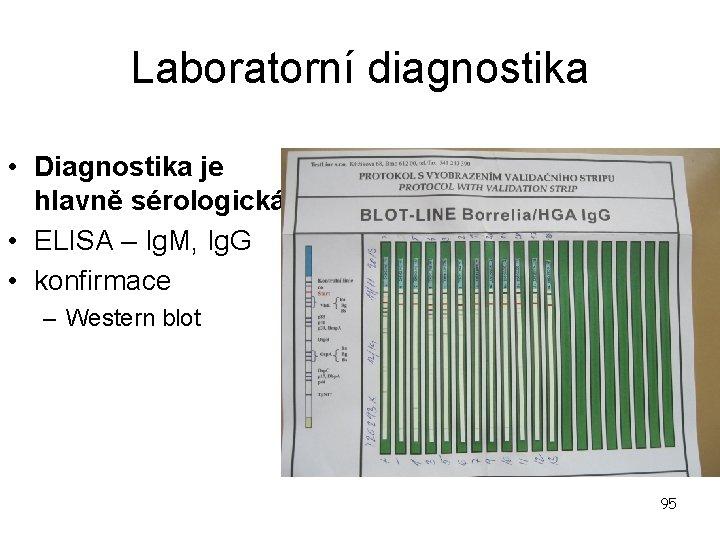 Laboratorní diagnostika • Diagnostika je hlavně sérologická • ELISA – Ig. M, Ig. G