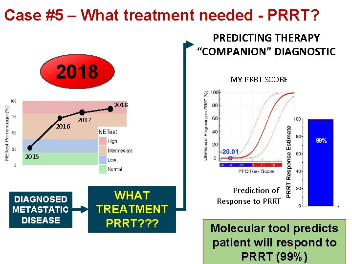 """Case #5 – What treatment needed - PRRT? PREDICTING THERAPY """"COMPANION"""" DIAGNOSTIC 2018 MY"""