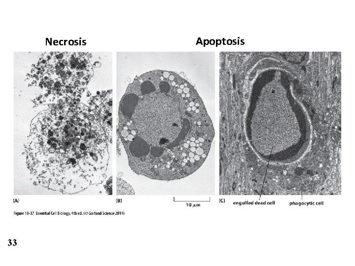 Necrosis 33 Apoptosis