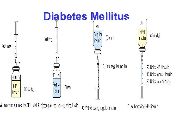 Diabetes Mellitus • Mixing insulin