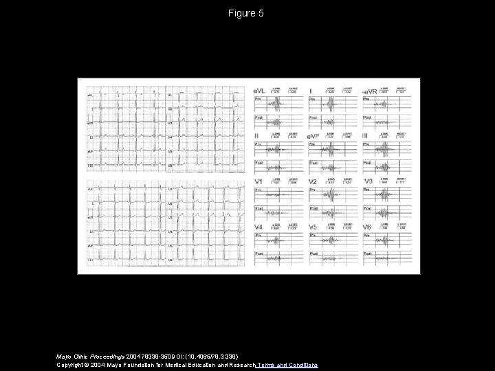 Figure 5 Mayo Clinic Proceedings 2004 79339 -350 DOI: (10. 4065/79. 3. 339) Copyright
