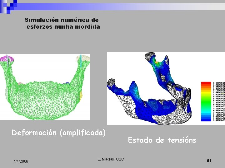 Simulación numérica de esforzos nunha mordida Deformación (amplificada) 4/4/2006 E. Macias. USC Estado de