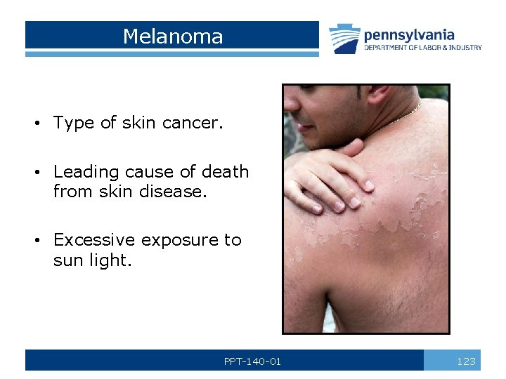 Melanoma • Type of skin cancer. • Leading cause of death from skin disease.