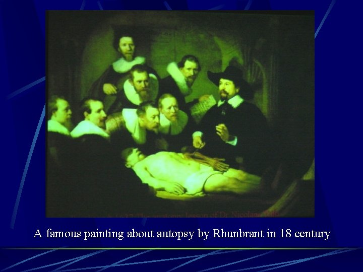 A famous painting about autopsy by Rhunbrant in 18 century
