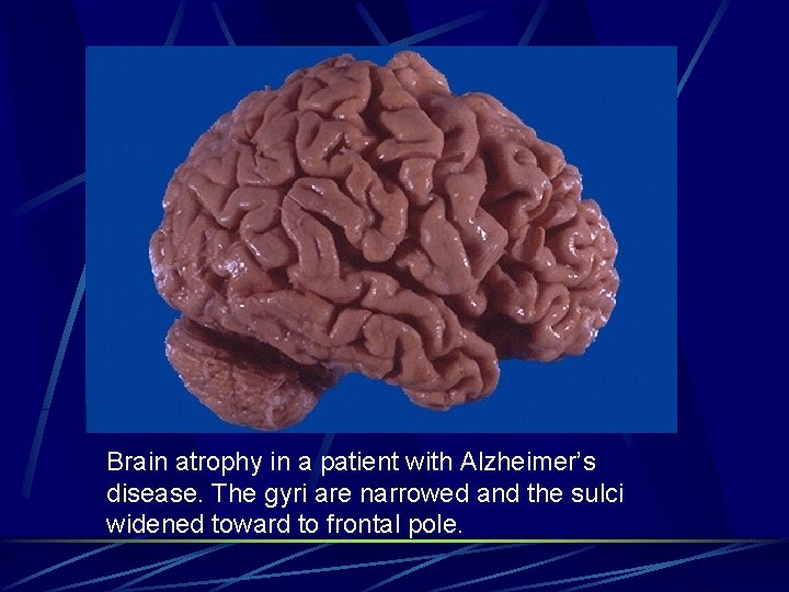 Brain atrophy in a patient with Alzheimer's disease. The gyri are narrowed and the