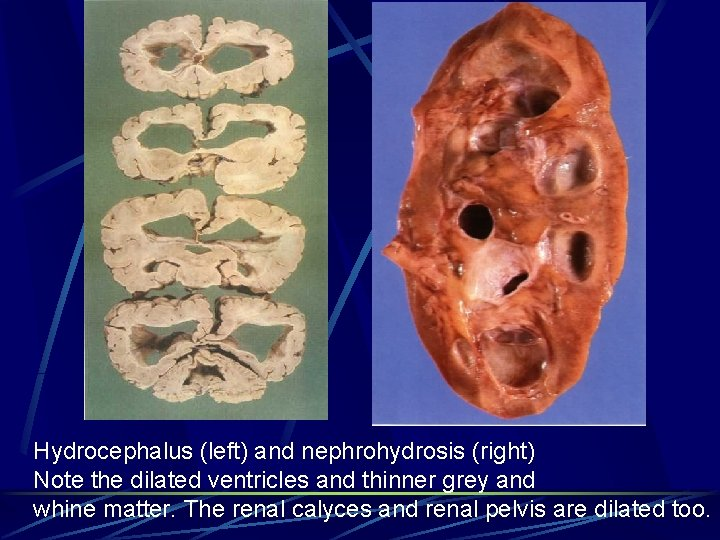 Hydrocephalus (left) and nephrohydrosis (right) Note the dilated ventricles and thinner grey and whine