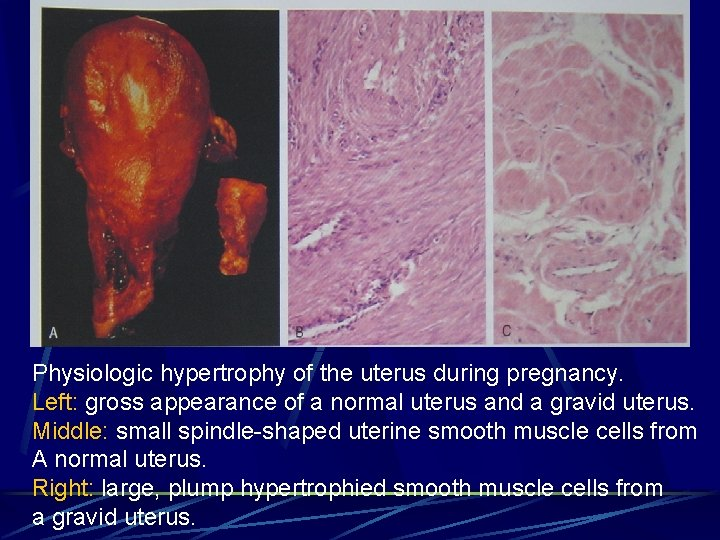 Physiologic hypertrophy of the uterus during pregnancy. Left: gross appearance of a normal uterus