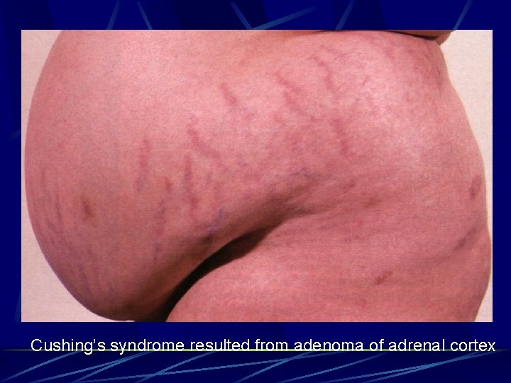 Cushing's syndrome resulted from adenoma of adrenal cortex