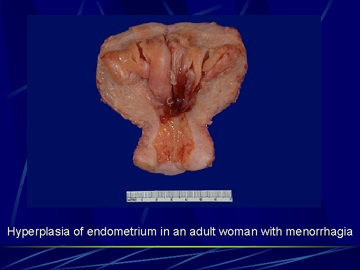Hyperplasia of endometrium in an adult woman with menorrhagia