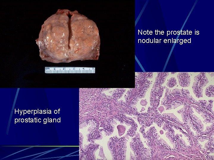 Note the prostate is nodular enlarged Hyperplasia of prostatic gland