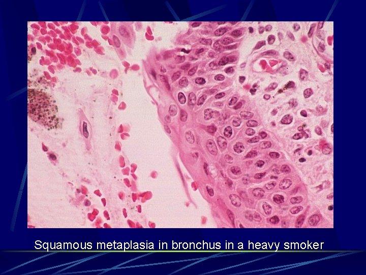 Squamous metaplasia in bronchus in a heavy smoker