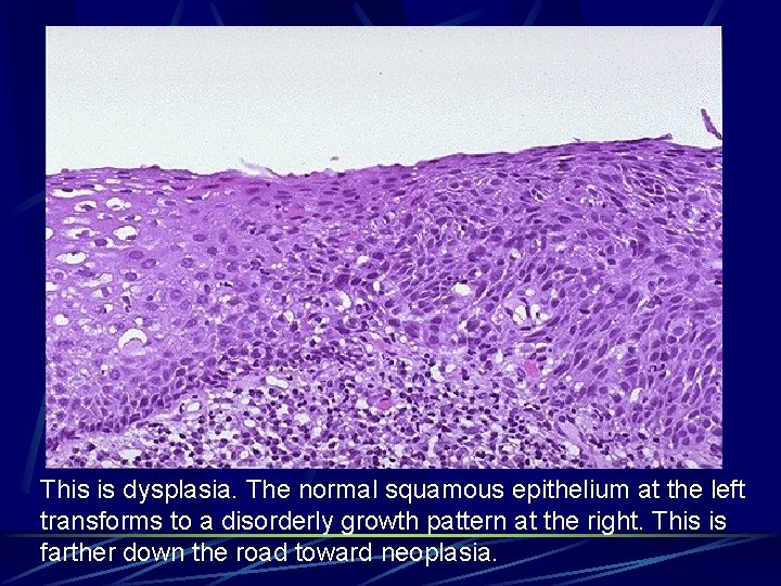 This is dysplasia. The normal squamous epithelium at the left transforms to a disorderly