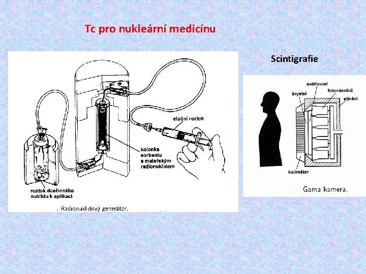 Tc pro nukleární medicínu Scintigrafie