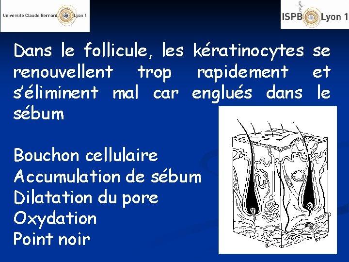 Dans le follicule, les kératinocytes se renouvellent trop rapidement et s'éliminent mal car englués