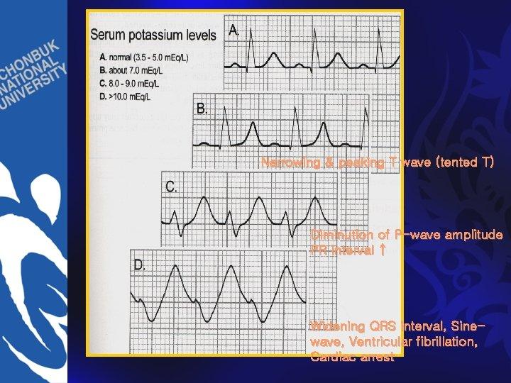 Narrowing & peaking T wave (tented T) Diminution of P-wave amplitude PR interval ↑