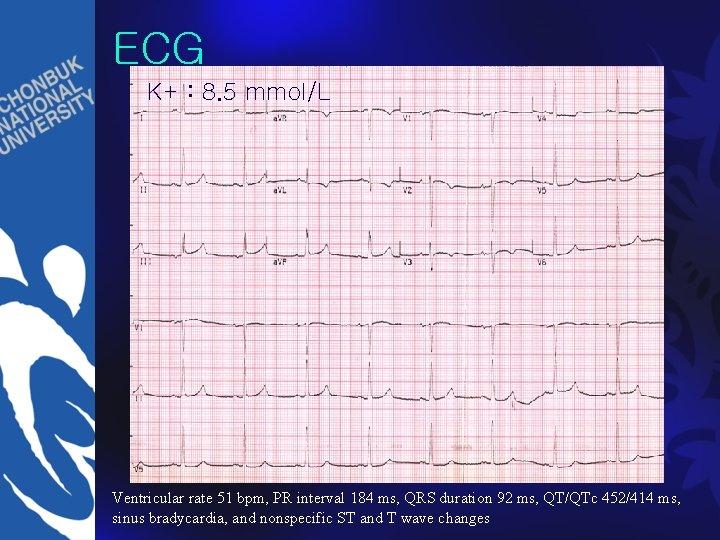 ECG K+ : 8. 5 mmol/L Ventricular rate 51 bpm, PR interval 184 ms,
