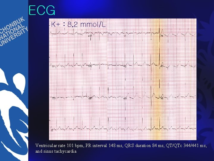 ECG K+ : 8. 2 mmol/L Ventricular rate 101 bpm, PR interval 148 ms,