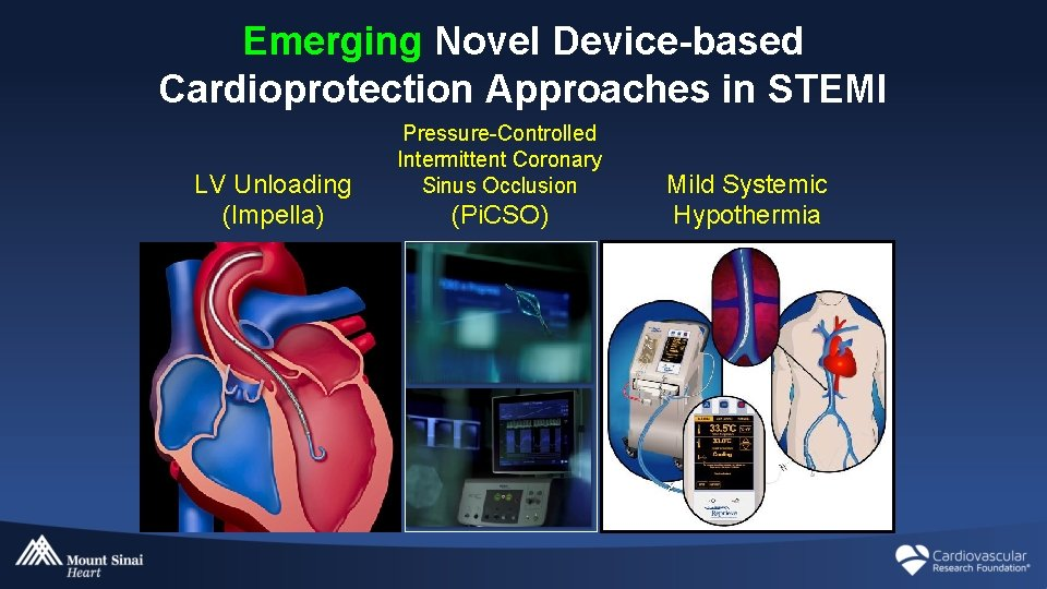 Emerging Novel Device-based Cardioprotection Approaches in STEMI LV Unloading (Impella) Pressure-Controlled Intermittent Coronary Sinus
