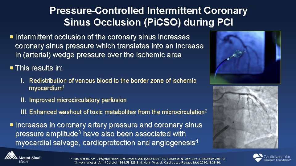 Pressure-Controlled Intermittent Coronary Sinus Occlusion (Pi. CSO) during PCI ¡ Intermittent occlusion of the