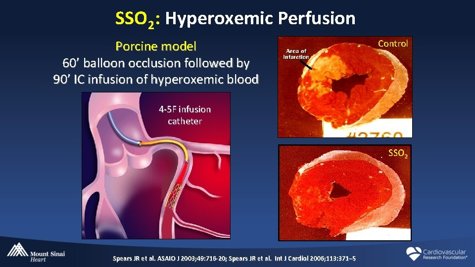 SSO 2: Hyperoxemic Perfusion Porcine model 60' balloon occlusion followed by 90' IC infusion