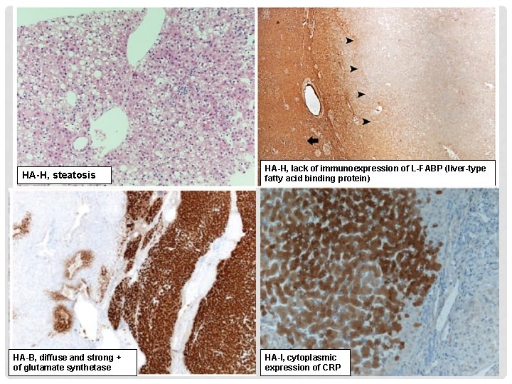 HA-H, steatosis HA-B, diffuse and strong + of glutamate synthetase HA-H, lack of immunoexpression