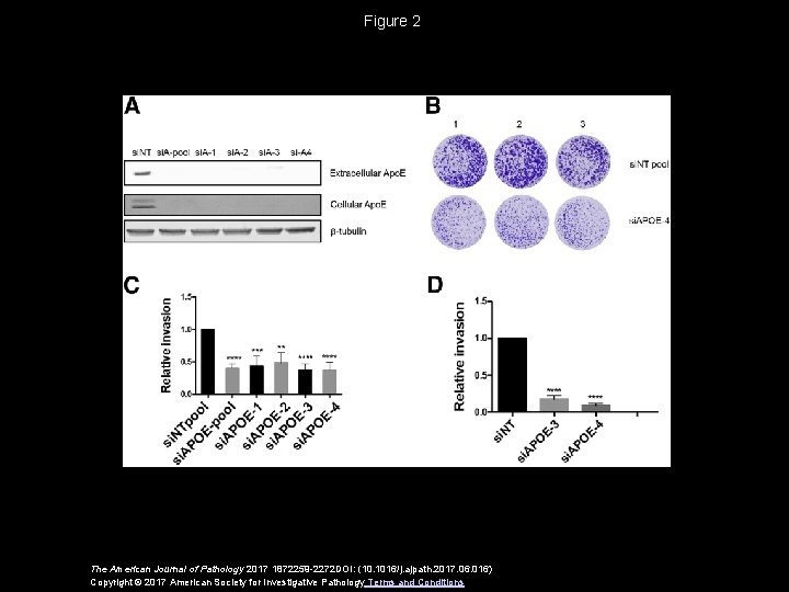 Figure 2 The American Journal of Pathology 2017 1872259 -2272 DOI: (10. 1016/j. ajpath.