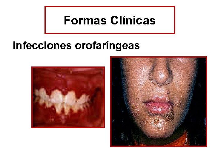 Formas Clínicas Infecciones orofaríngeas