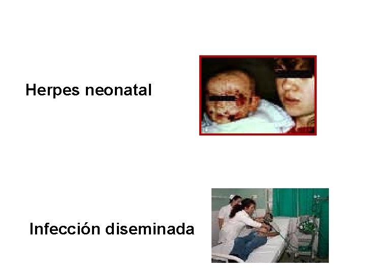Herpes neonatal Infección diseminada