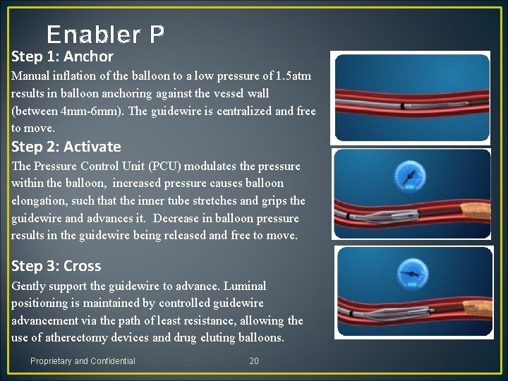 Enabler P Step 1: Anchor Manual inflation of the balloon to a low pressure