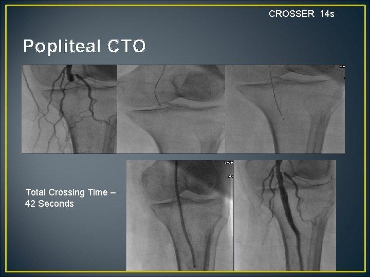 CROSSER 14 s Popliteal CTO Total Crossing Time – 42 Seconds