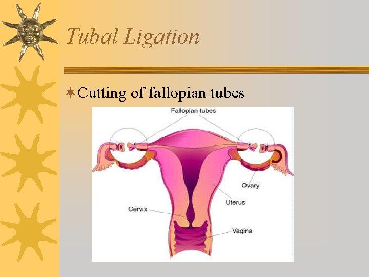 Tubal Ligation ¬Cutting of fallopian tubes