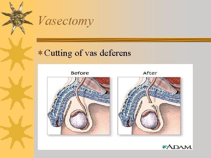 Vasectomy ¬Cutting of vas deferens